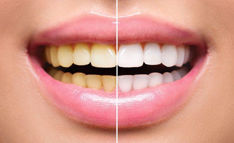 黄ばんでいる歯